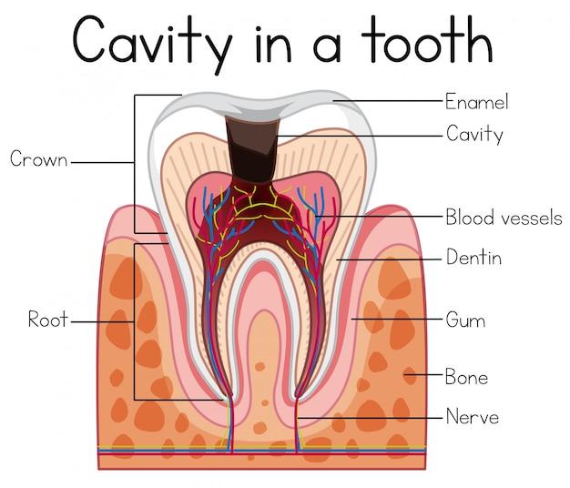 Cavité dans une dent