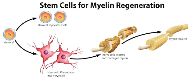 Cellule souche pour la régénération de la myéline