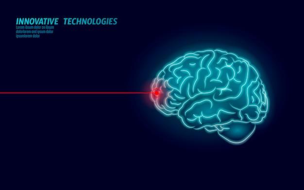 Chirurgien laser cerveau traitement low poly rendu 3d. médicament nootropique capacité humaine santé mentale intelligente. réadaptation cognitive en médecine dans la maladie d'alzheimer et l'illustration de la démence