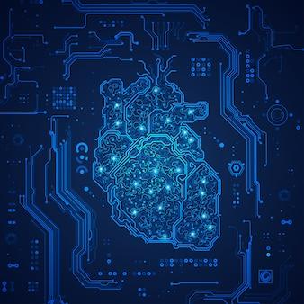 Coeur électronique