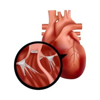 Coeur humain réaliste avec illustration d'organe cardiaque agrandi en coupe transversale