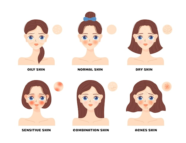 Collection de types de peau de dessin animé