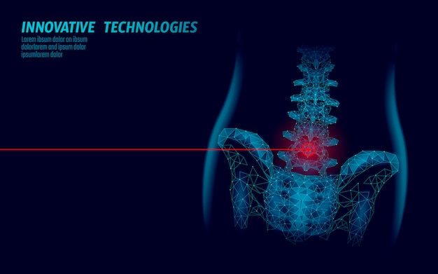 Colonne vertébrale humaine hanche radiculite lombaire douleur low poly. triangle de particules géométriques polygonales point ligne future médecine technologie bleu rouge zone douloureuse illustration vectorielle