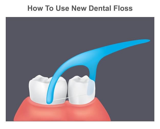 Comment utiliser le nouveau fil dentaire. illustration des dents et des gencives saines en utilisant un nouveau fil dentaire.