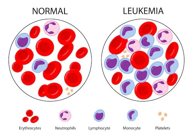 Comparaison du sang normal et de la leucémie cancer du sang globules rouges et blancs
