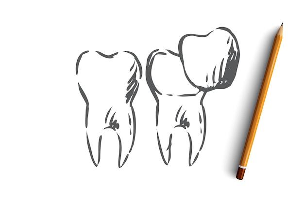 Concept de blanchiment dentaire de soins dentaires de placage