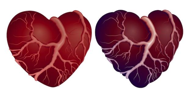 Concept de coeurs sains et malades
