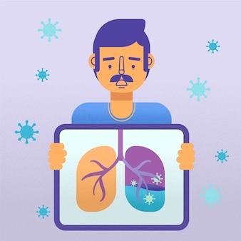 Concept de coronavirus penumonia