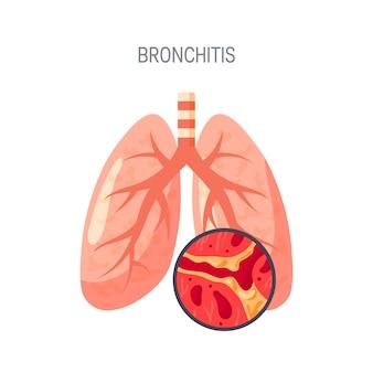 Concept de maladie de bronchite. dans un style plat pour les atlas médicaux, articles, infographies, etc.