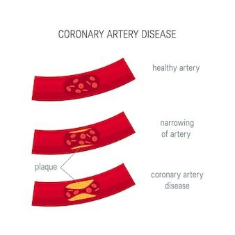 Concept de maladie coronarienne.