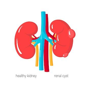 Concept de maladie polykystique des reins dans un style plat