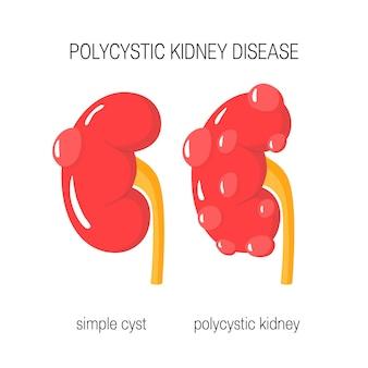 Concept de maladie polykystique des reins en illustration de style plat