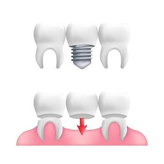 Concept de prothèse - dents saines avec bridge dentaire fixe et implants.