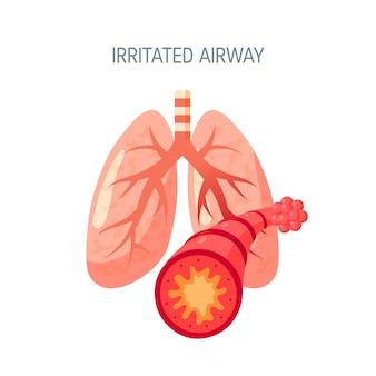 Concept de voies respiratoires irritées dans un style plat.