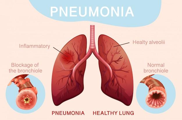 Conception d'affiche pour la pneumonie avec les poumons humains