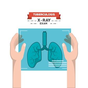 Conception de la conception de la tuberculose
