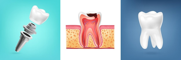 Conception réaliste avec illustration de l'anatomie de la dent humaine