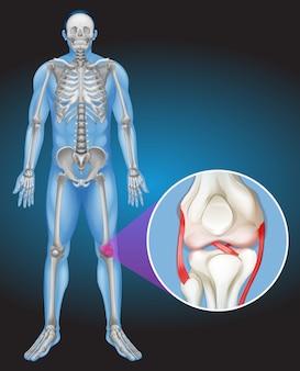 Corps humain et douleur au genou