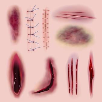 Couture réaliste. la coloration des cicatrices sanglantes coupe la médecine de différentes blessures ou la collection d'horreur. illustration des blessures chirurgicales réalistes, des entailles et des traumatismes