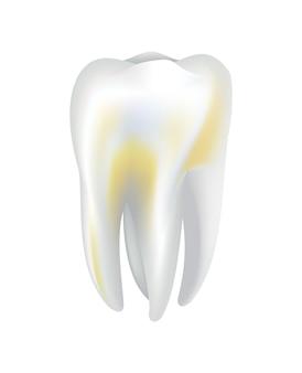 Dent humaine malade. icône de vecteur médical dentaire. besoin de soins dentaires pour les dents tachées ou les caries dentaires. restauration des dents buccales