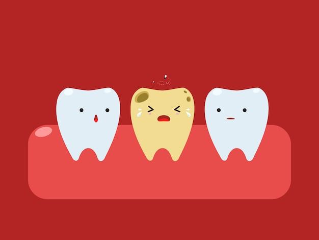 Une dent pourrie jaune pleure entre les dents