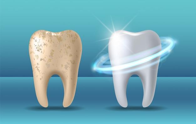 Dent propre et sale avant et après blanchiment