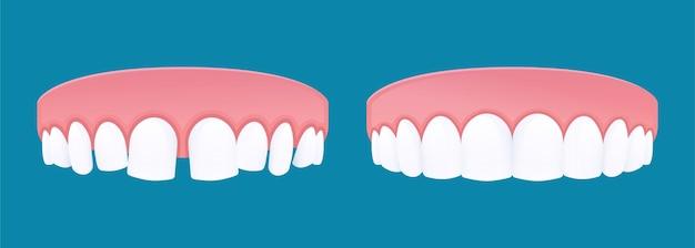 Dents de diastème avec espacement dentaire et dents saines