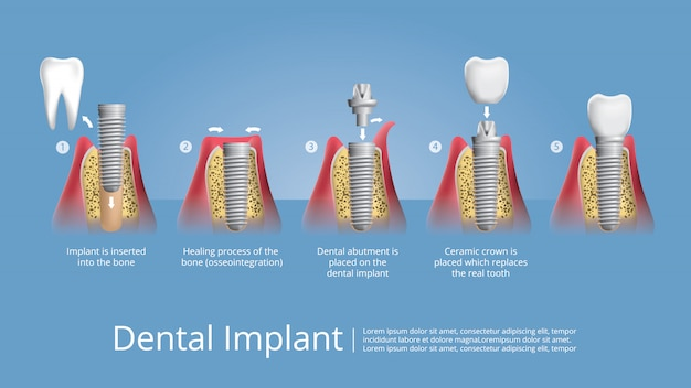 Dents humaines et implant dentaire illustration vectorielle