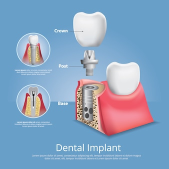 Dents humaines et implant dentaire