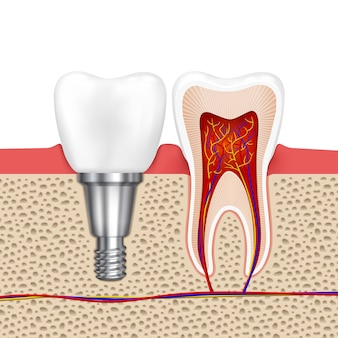 Dents saines et implant dentaire. dent d'implant, dentisterie médicale dent de santé, illustration vectorielle