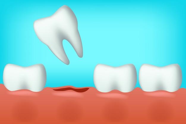 Les dents sont tombées