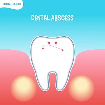 Dessin animé icône de mauvaise dent avec abcès dentaire