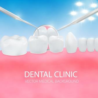 Diagnostic des dentistes.