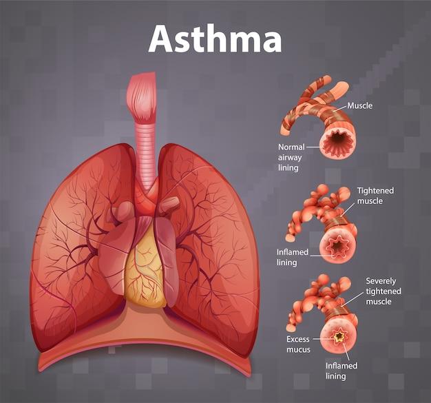 Diagramme d'asthme de l'anatomie humaine