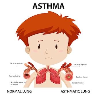 Diagramme de l'asthme avec poumon normal et poumon asthmatique