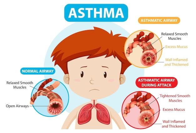Diagramme de l'asthme avec voies respiratoires normales et voies respiratoires asthmatiques