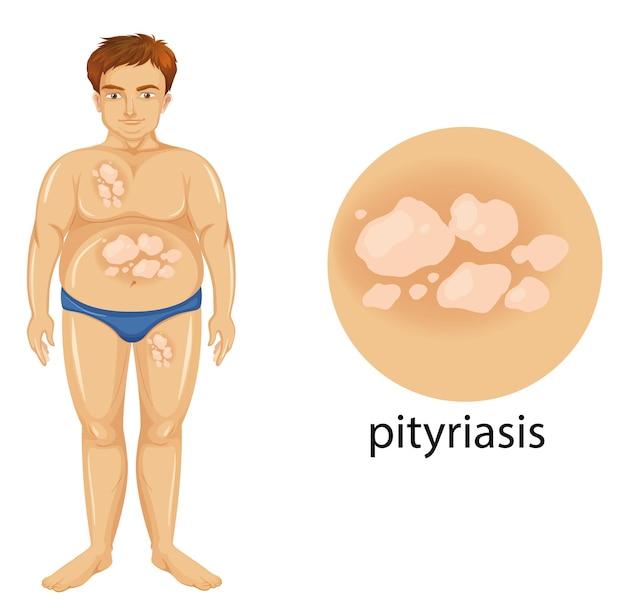Diagramme montrant un homme atteint de pityriasis