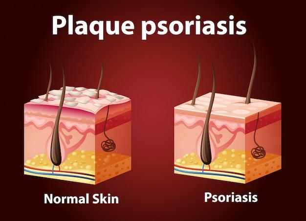 Diagramme montrant le psoriasis en plaques
