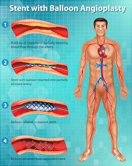 Diagramme montrant un stent avec angioplastie par ballonnet dans le corps humain