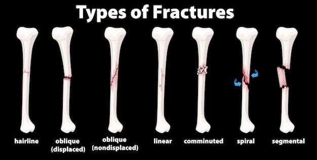 Diagramme des types de fractures