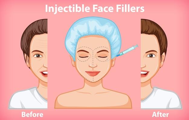 Différents produits de remplissage pour le visage avant et après
