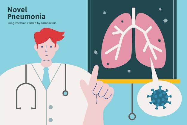 Docteur expliquant la pneumonie romane dans une illustration de style plat