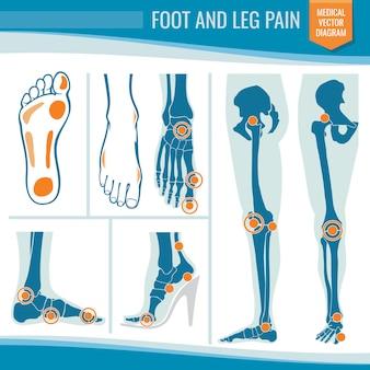 Douleur au pied et à la jambe. diagramme de vecteur médical orthopédique arthrite et rhumatisme