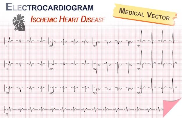 Électrocardiogramme de cardiopathie ischémique (infarctus du myocarde)