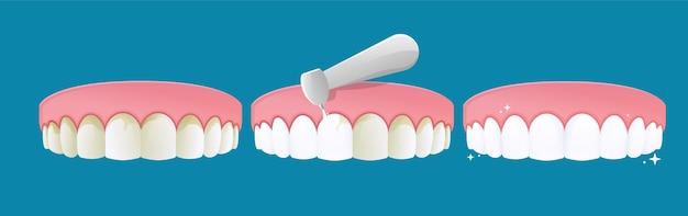 Élimination des calculs dentaires
