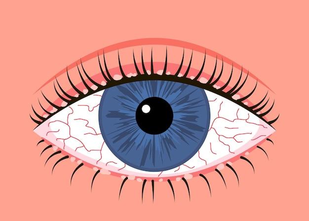 Enflammé malade œil humain blépharite symptôme d'allergie veines rouges maladie oculaire conjonctivite allergique