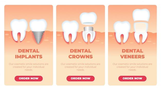 Ensemble de bannières inscription implants dentaires couronnes facettes.