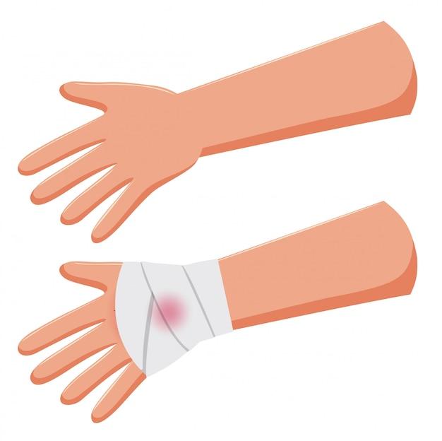 Ensemble de bras et bandage à la main