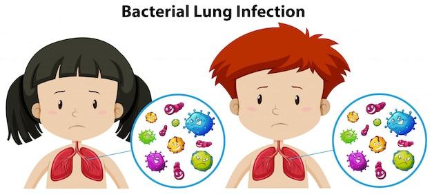 Un ensemble d'infection pulmonaire bactérienne