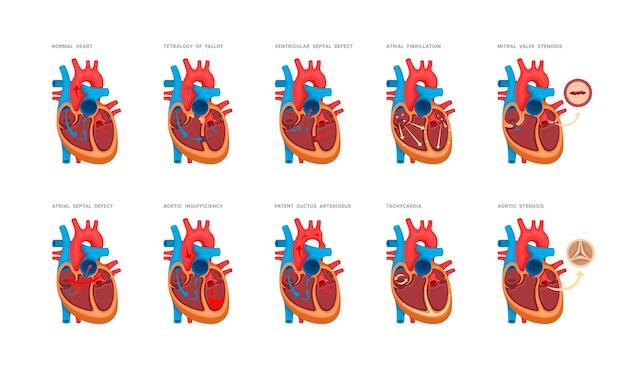 Ensemble de malformations cardiaques